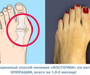 Инновационное средство от косточки на ноге.