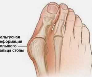 Домашний крем от косточки на ноге
